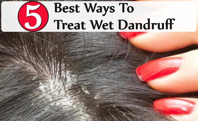 Best Ways To Treat Wet Dandruff