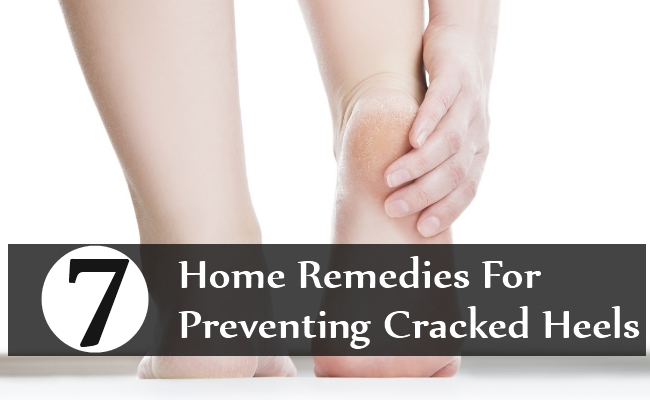 Home Remedies For Preventing Cracked Heels