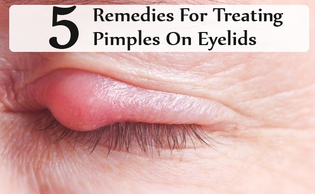 Remedies For Treating Pimples On Eyelids