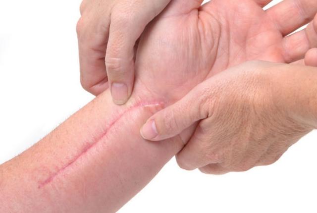 Lightens Scars