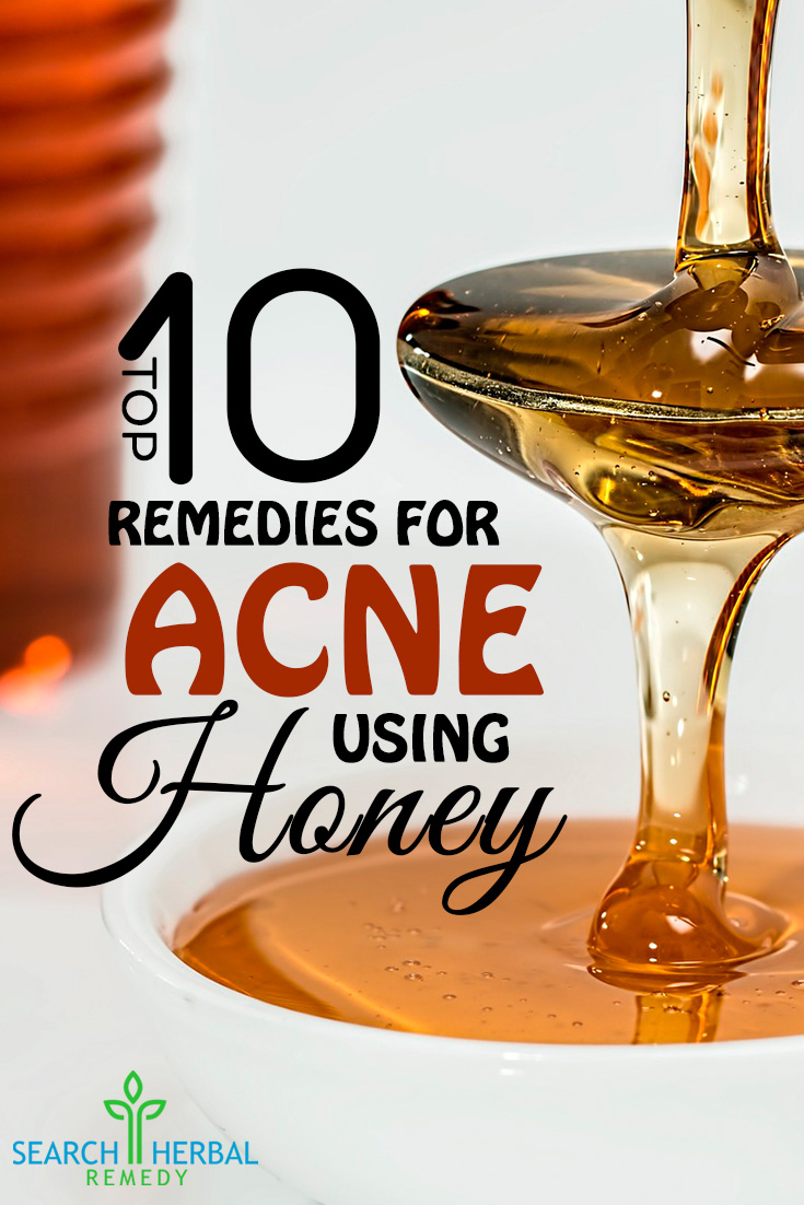 Top 10 Remedies For Acne Honey