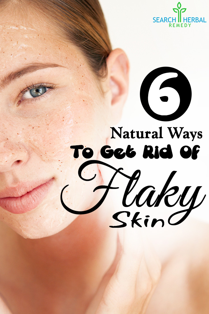 6 Easy Natural Ways To Get Rid Of Flaky Skin