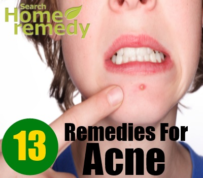 13 Home Remedies For Acne