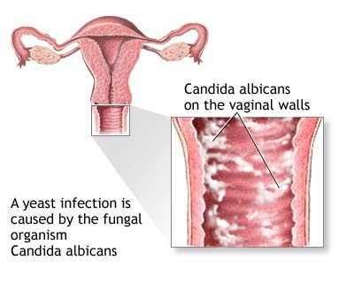 Home Remedies For Vaginal Itching Search Home Remedy