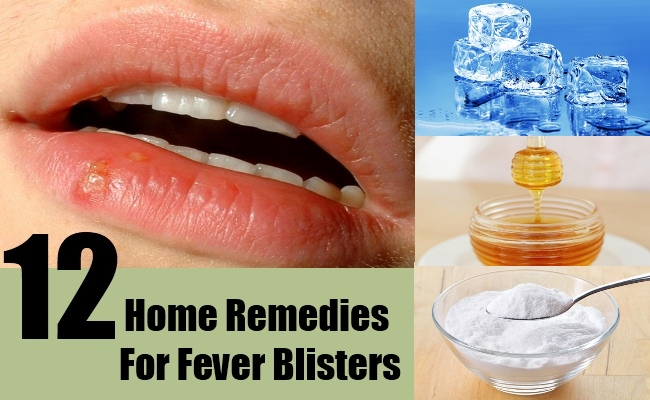 12 Home Remedies For Fever Blisters