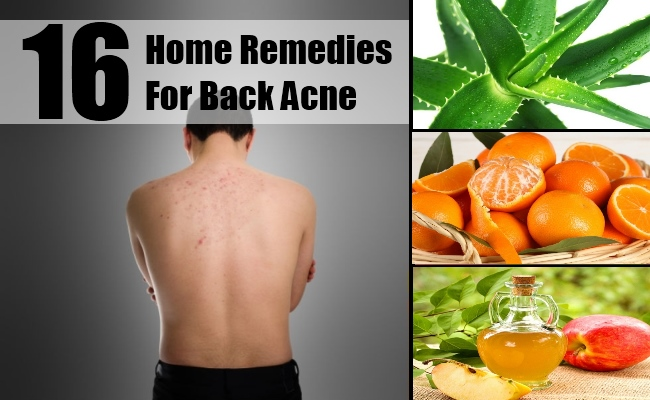 16 Home Remedies For Back Acne