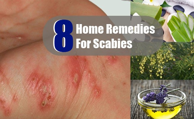 8 Home Remedies For Scabies Search Home Remedy