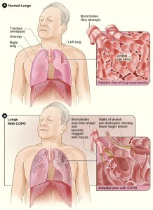 Drugs And Medications To Treat COPD