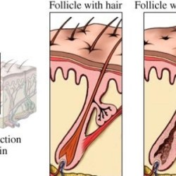 Drugs And Medications To Treat Hair Loss