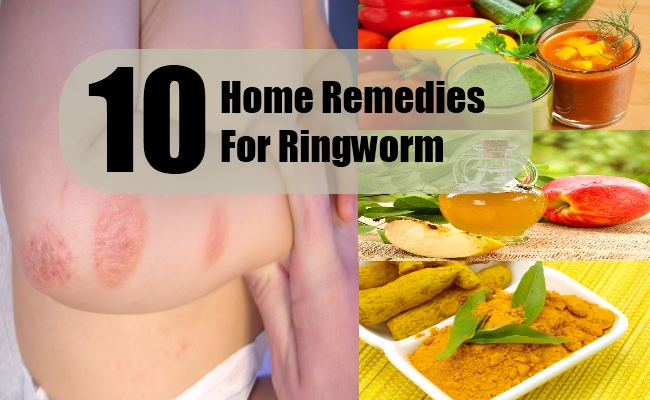Home Remedies For Ringworm In Humans