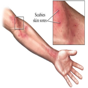 Drugs And Medications To Treat Scabies