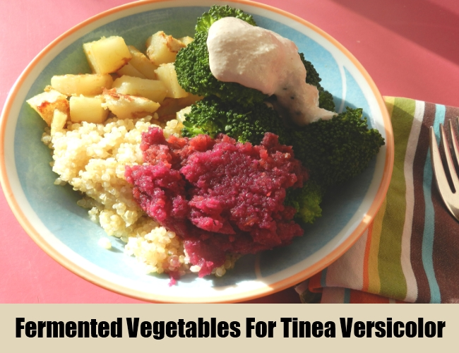 Fermented Vegetables For Tinea Versicolor