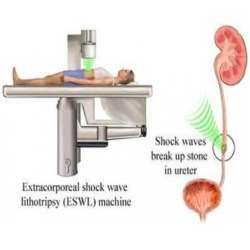 laser surgery for kidney stones