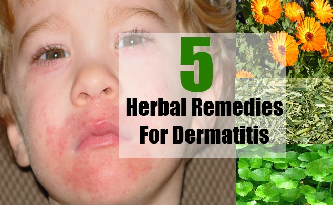 Herbal Remedies For Dermatitis