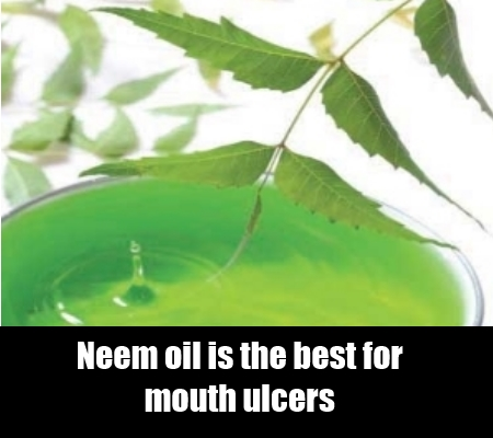 Neem Essential oil.