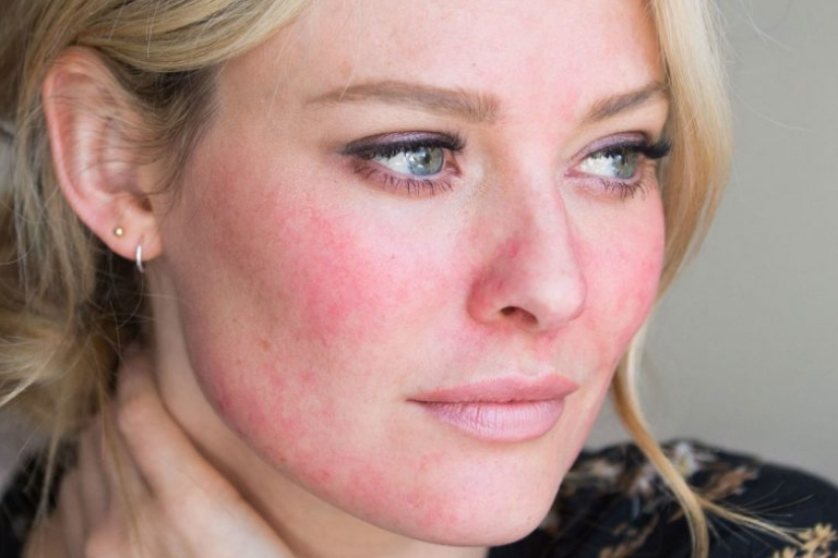 6 Best Rosacea Home Remedies