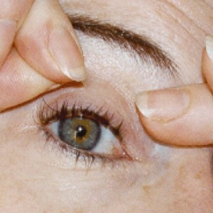 Eye Lift Surgery Procedure and Care