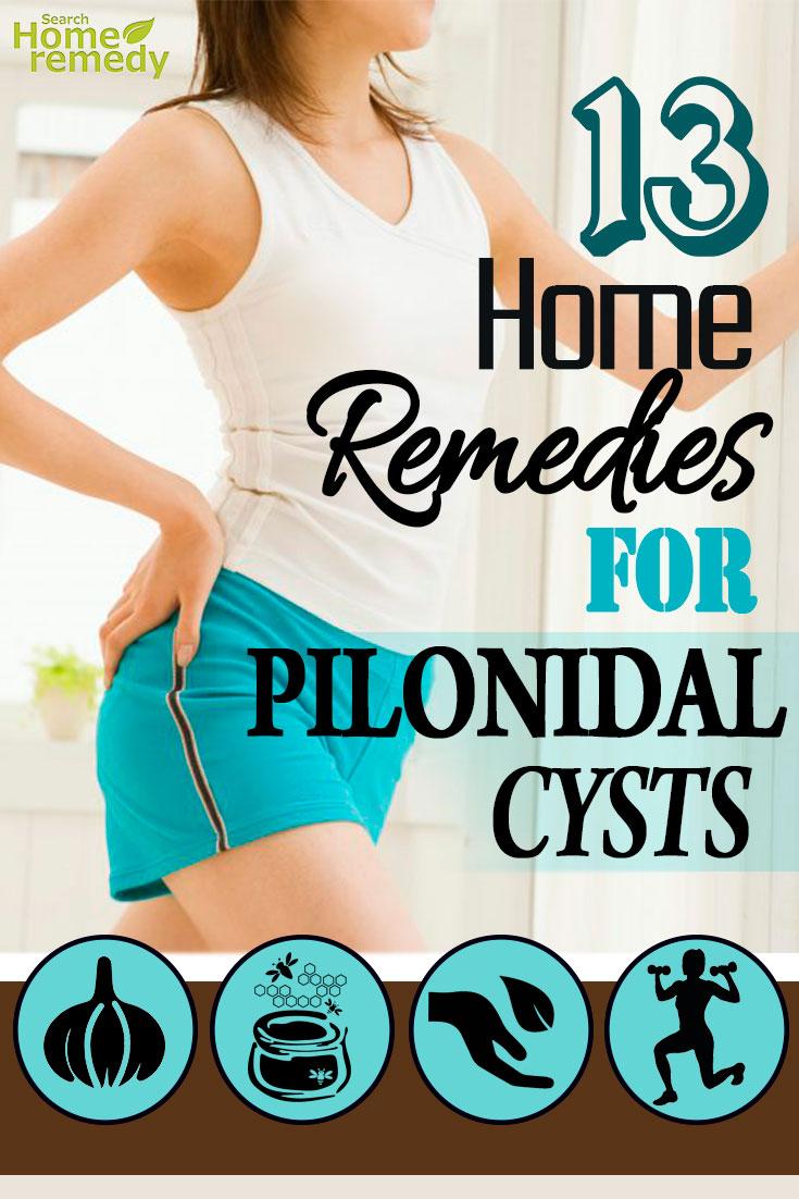 Home Remedies For Pilonidal Cysts
