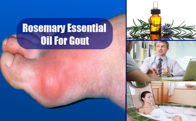 Rosemary Essential Oil For Gout
