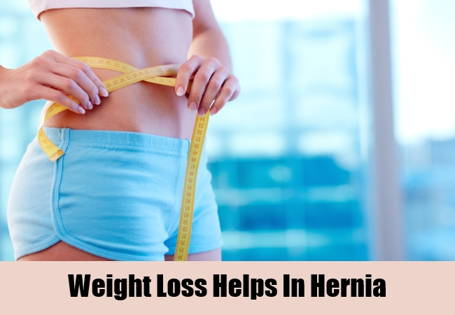 Weight Loss Helps In Hernia