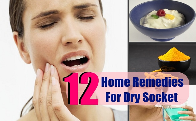 12 Effective Home Remedies For Dry Socket Search Home Remedy