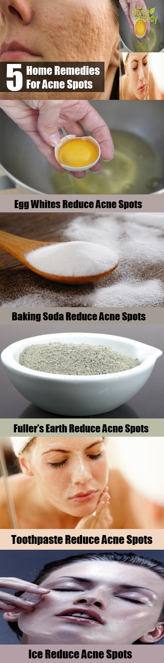 5 Simple Home Remedies For Acne Spots