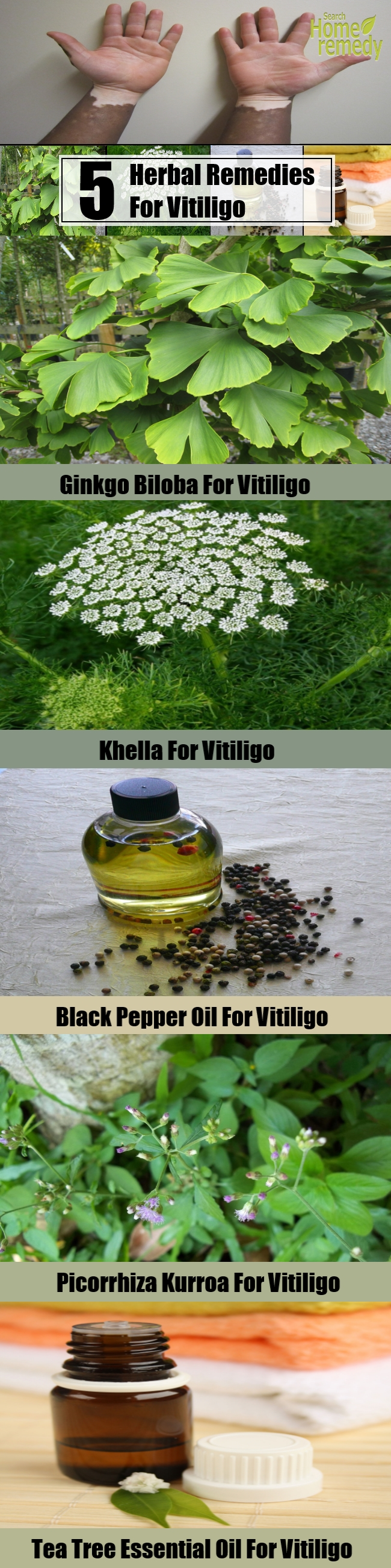 5 Useful Herbal Remedies For Vitiligo