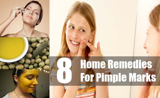 Home Remedies For Pimple Marks