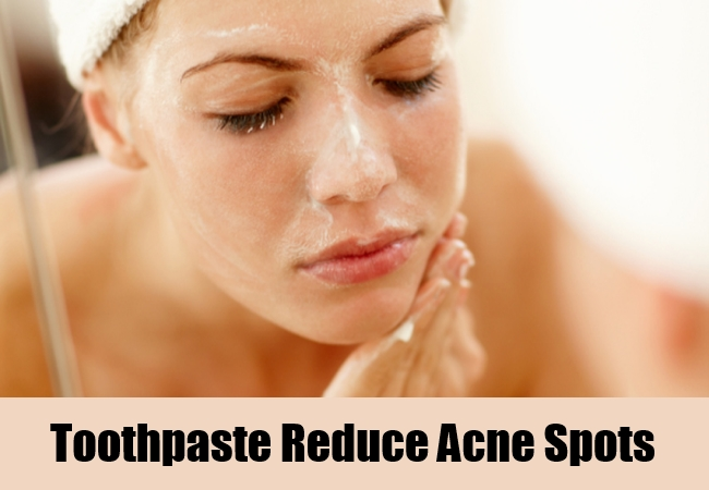 Toothpaste Reduce Acne Spots
