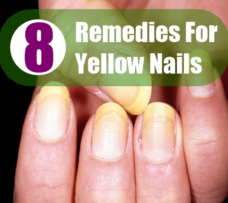 Fortunately Apart From Covering Yellow Nails With Nail Color There Exist Several Useful Home Remes To Make Your Return Their Original White