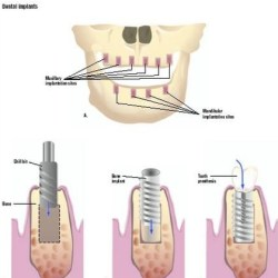 Dental Implants Surgery