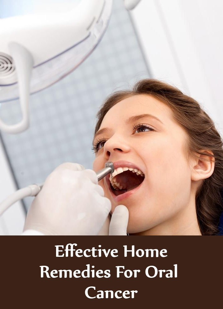 Effective Home Remedies For Oral Cancer