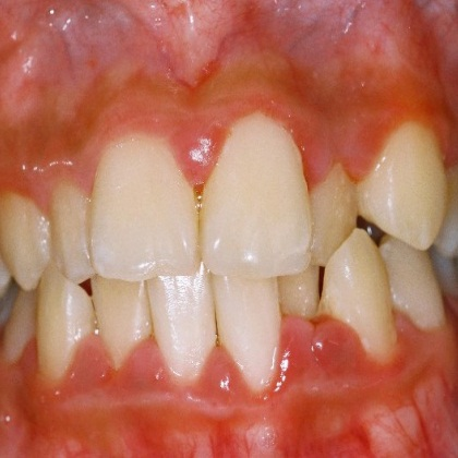 6 Best Herbal Remedies For Gum Infection How To Treat