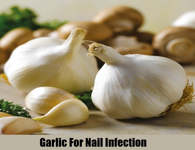 Garlic For Nail Infection