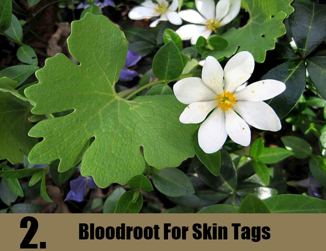 Bloodroot For Skin Tags