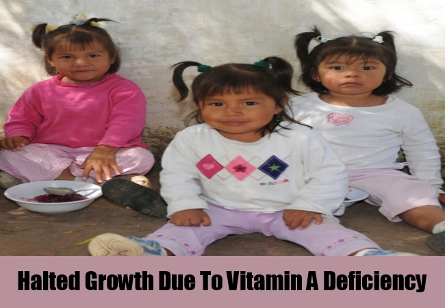 Halted Growth Due To Vitamin A Deficiency