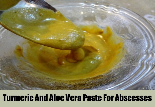 Turmeric And Aloe Vera Paste For Abscesses