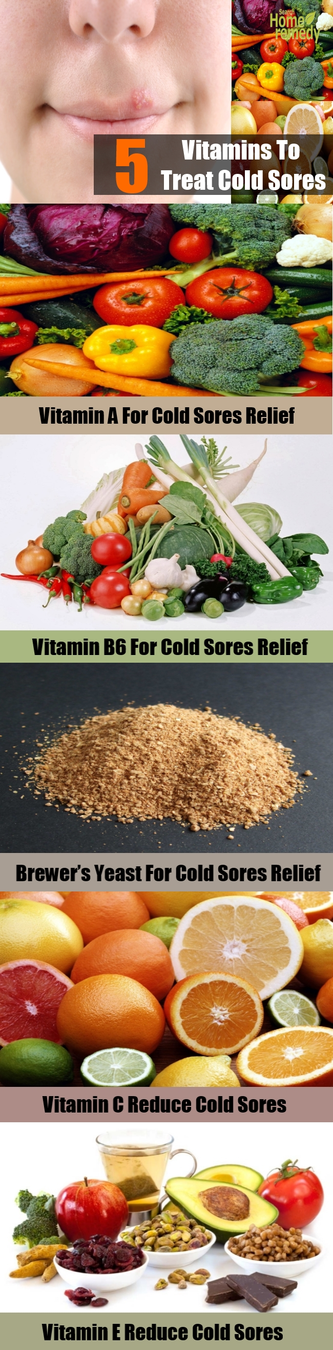 5 Vitamins To Treat Cold Sores