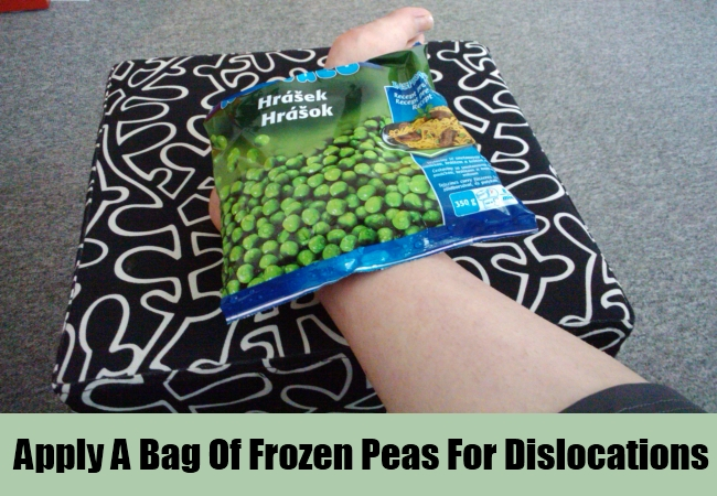 Apply A Bag Of Frozen Peas For Dislocations