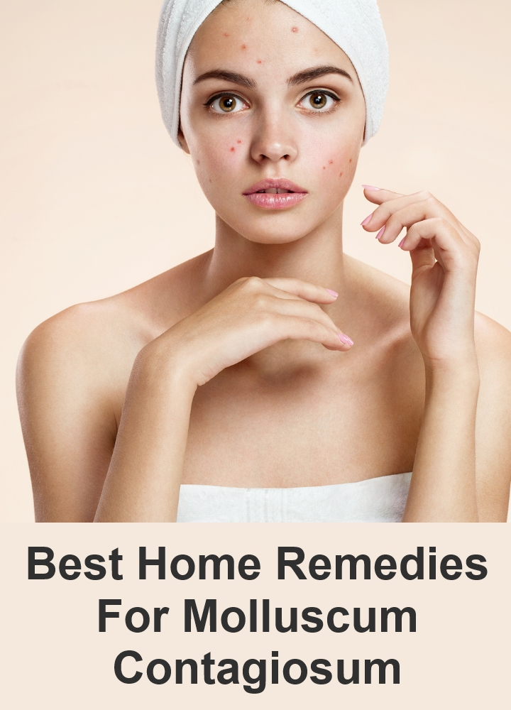 Best Home Remedies For Molluscum Contagiosum