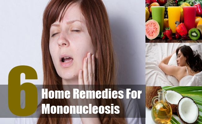 Home Remedies For Mononucleosis