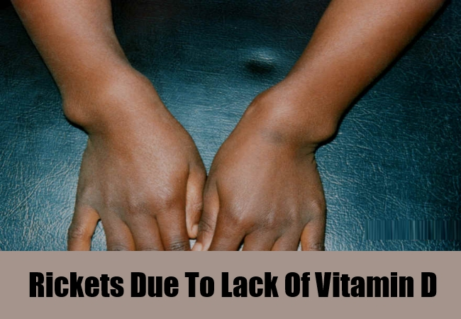 Rickets Due To Lack Of Vitamin D