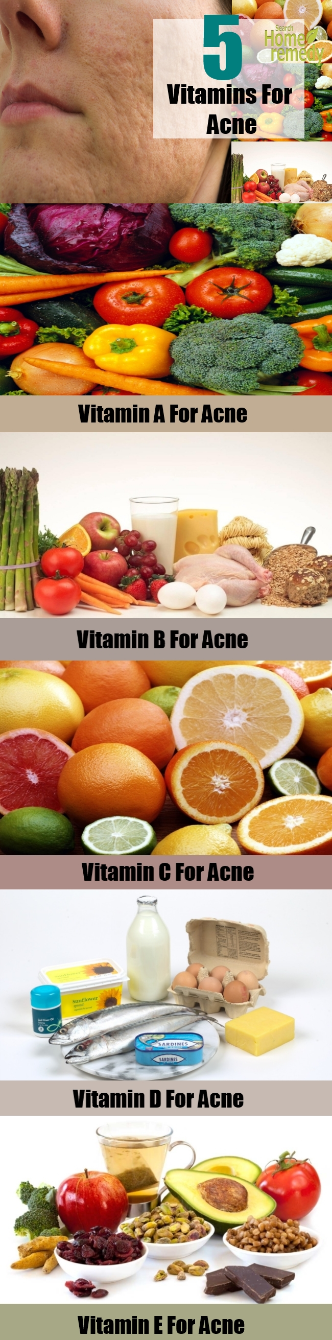 Top 5 Vitamins For Acne