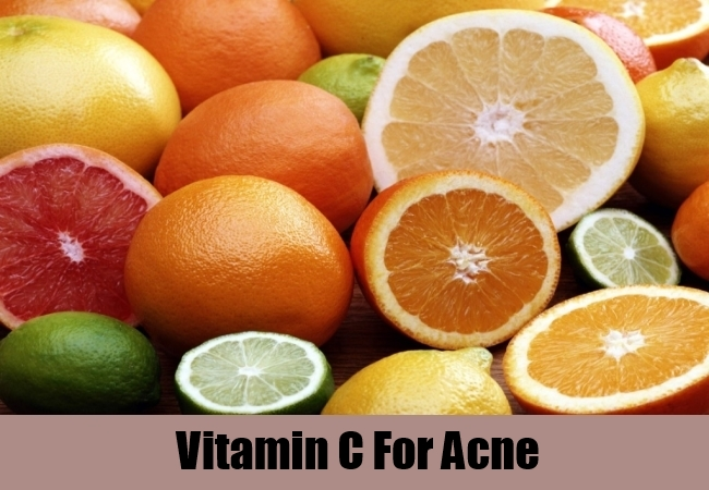 Vitamin C For Acne