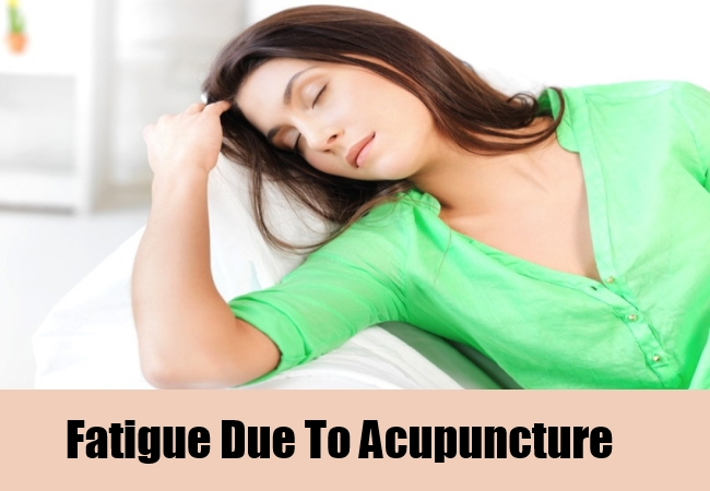 Fatigue Due To Acupuncture