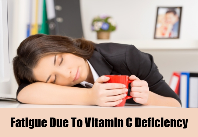 Fatigue Due To Vitamin C Deficiency