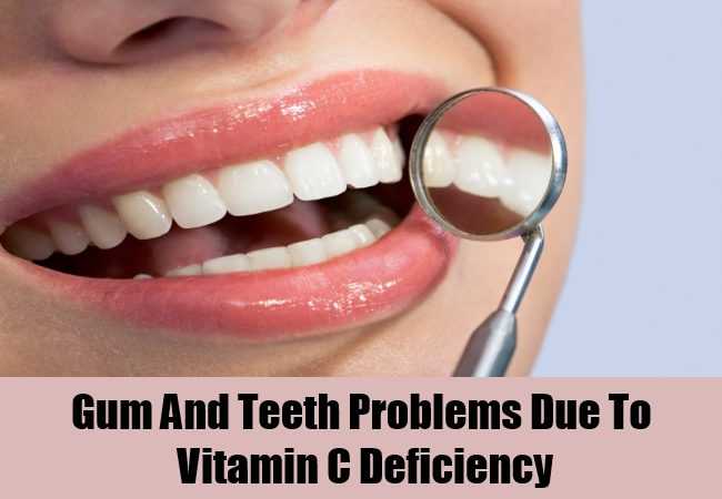 Gum And Teeth Problems Due To Vitamin C Deficiency