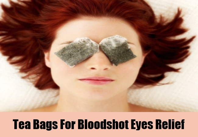 Tea Bags For Bloodshot Eyes Relief
