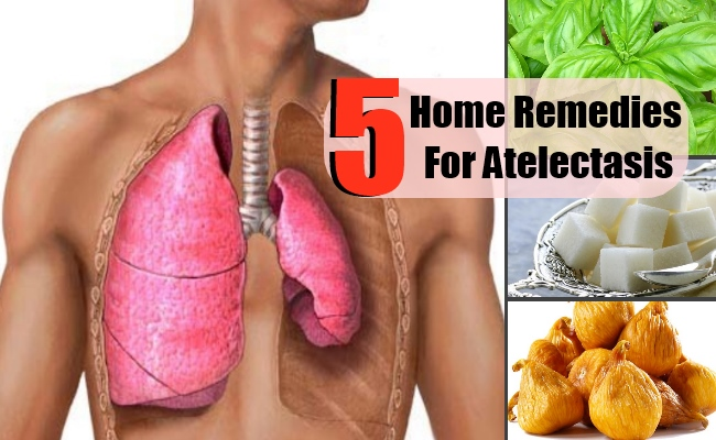 Top 5 Home Remedies For Atelectasis