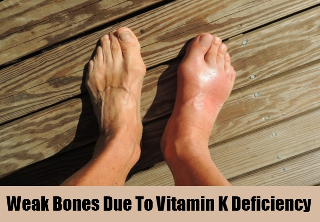 Weak Bones Due To Vitamin K Deficiency